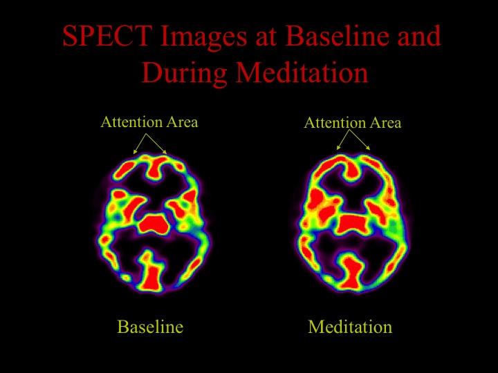 A parte frontal do cérebro (mostrada aqui em vermelho) é mais ativa durante a meditação.